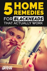 blackhead home remedies