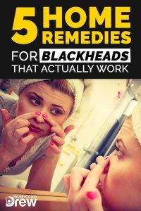 blackhead home remedies